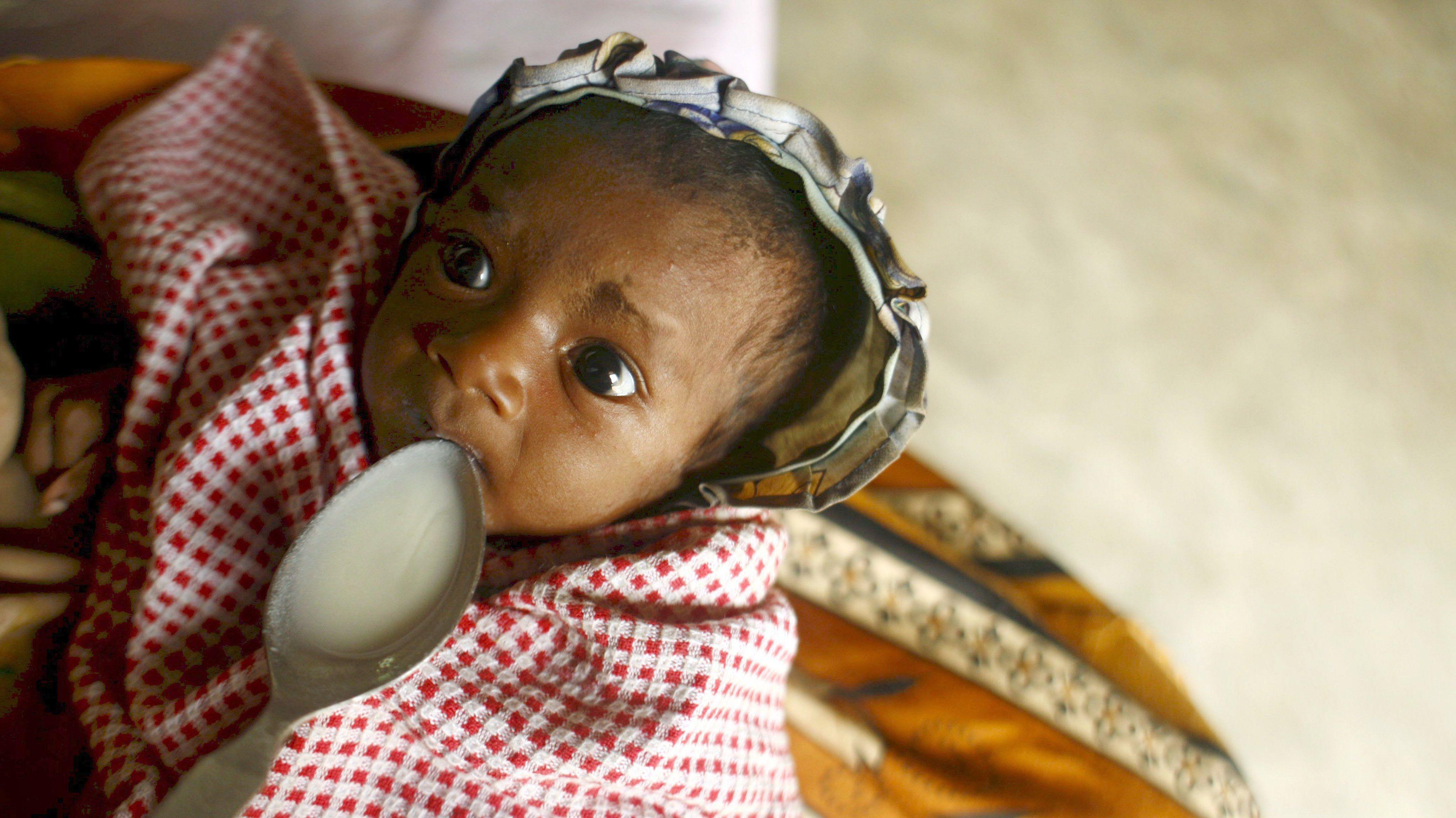Ein unterernährtes Baby