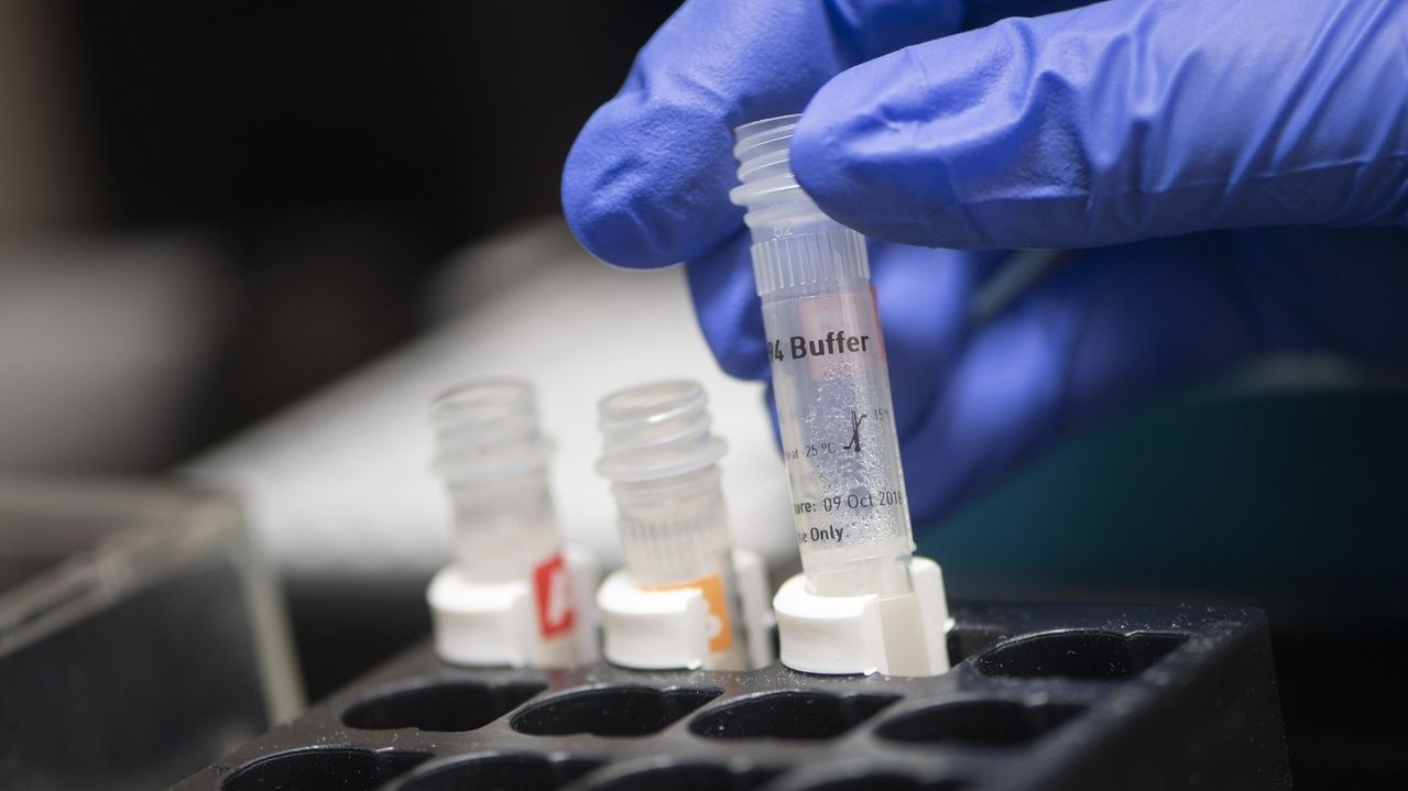 Coronatest-Röhrchen im Labor