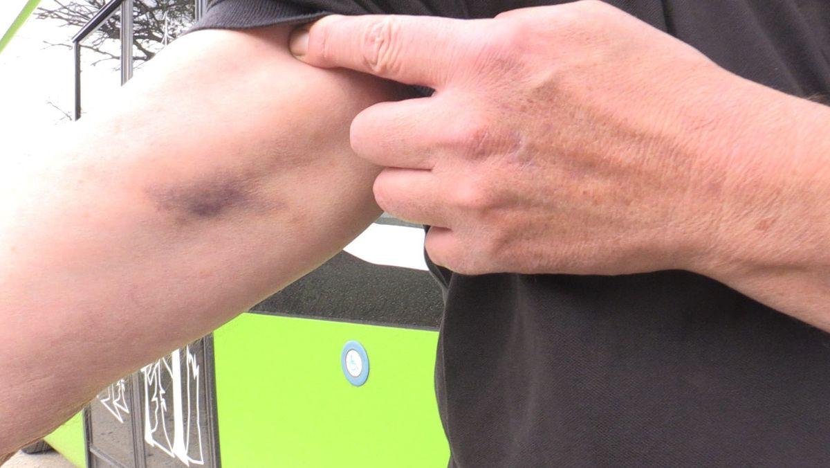 Der Busfahrer zeigt einen blauen Fleck