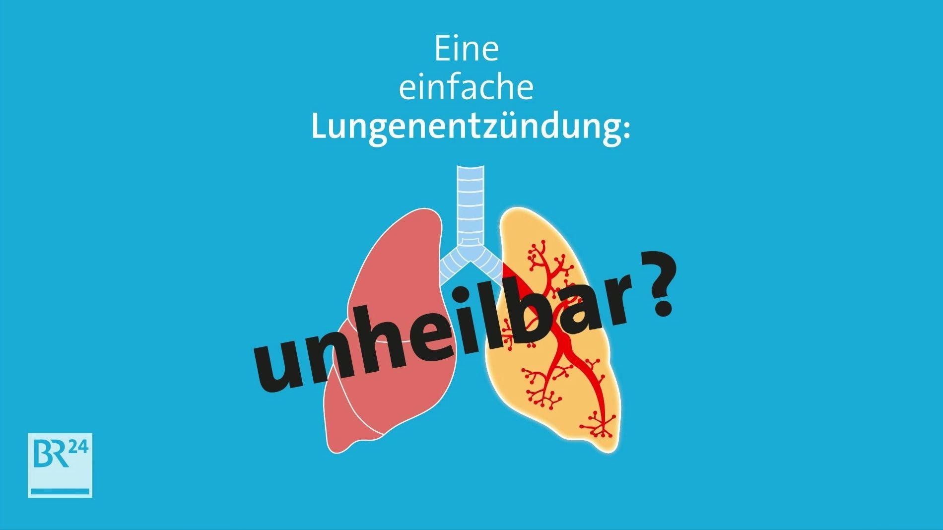 #fragBR24💡 Antibiotika-Resistenzen auf dem Vormarsch
