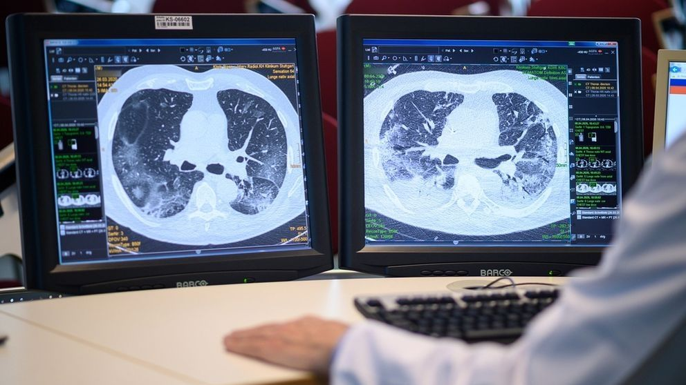 Covid-19 schädigt Lunge