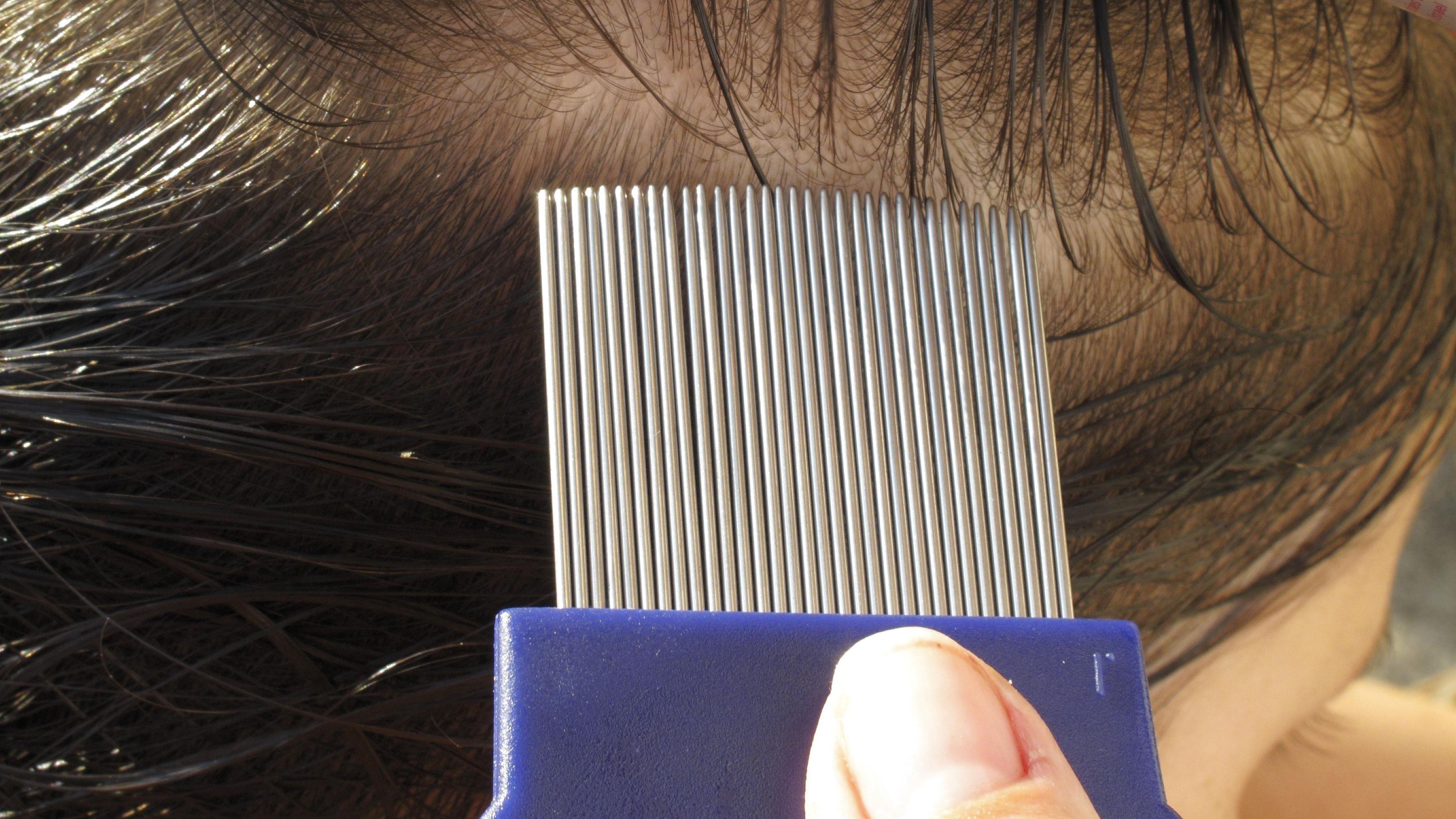 Beseitigung von Läusen aus Kinderhaaren mit Läusekamm