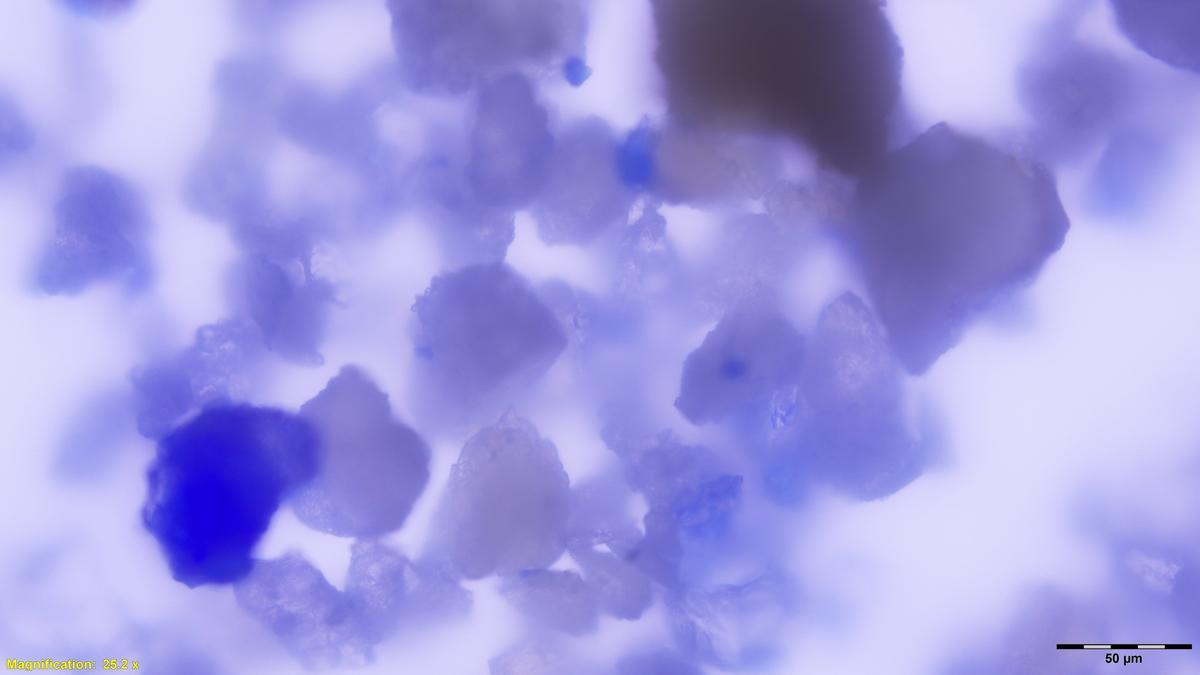 Dies ist eine vergrößerte Ansicht von Lapislazuli-Partikeln, die in mittelalterlichen Zahnstein eingebettet sind.