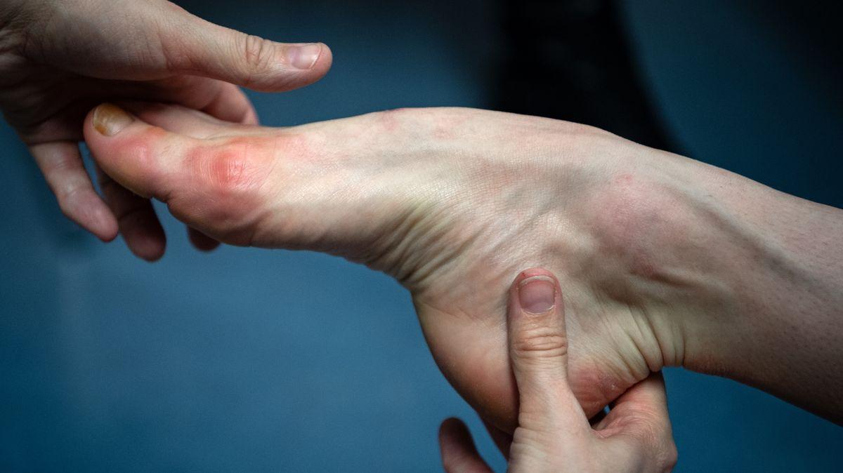 Sophie Simpson von der Londoner Herstellerfirma Freed für Spitzenschuhe schaut sich die Füße einer Tänzerin aus dem Ensemble des Bayerischen Staatsballett an