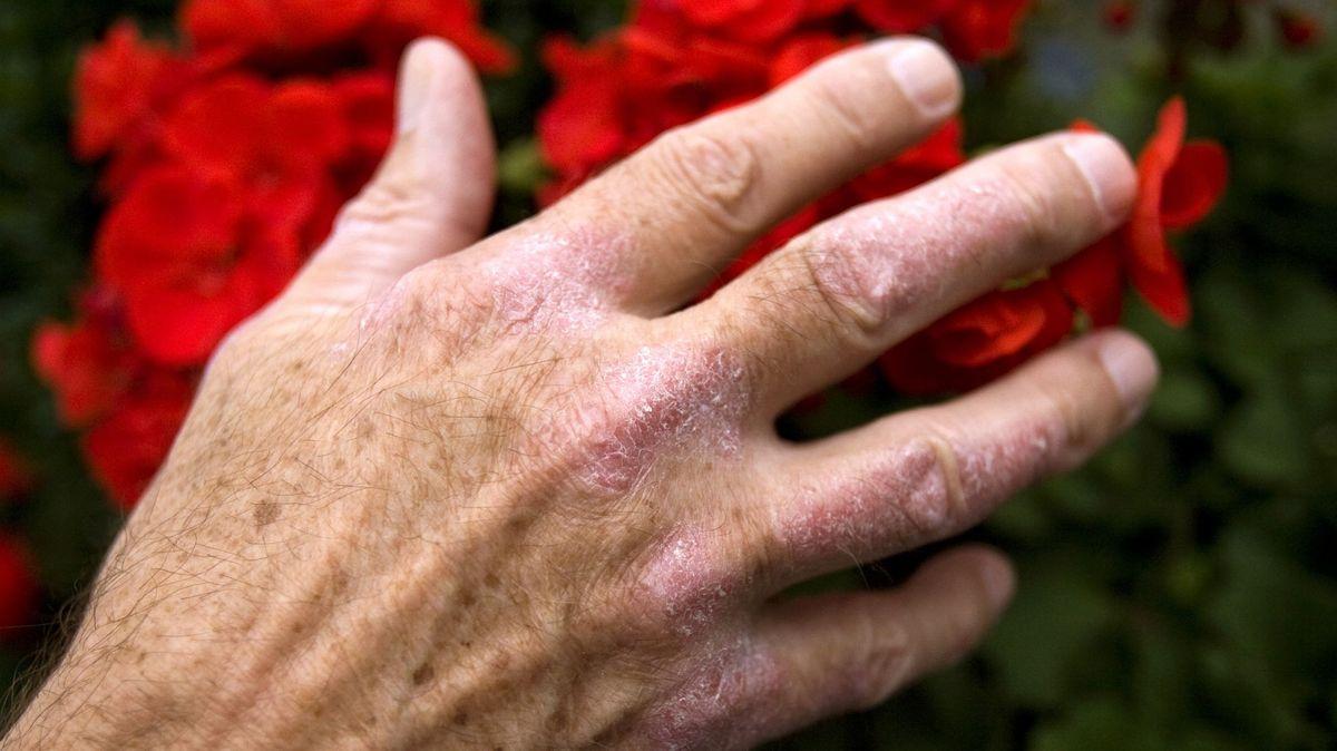 Schuppenflechte an der Hand