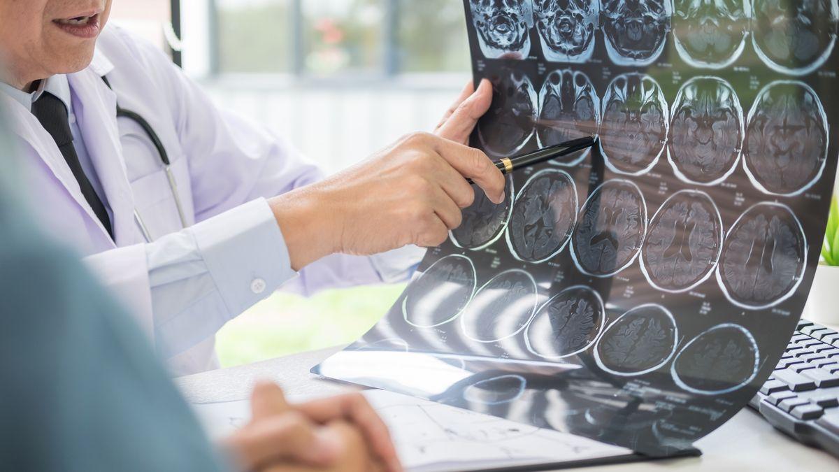 Arzt und Patient blicken auf eine Computerromografie eines Gerhins.