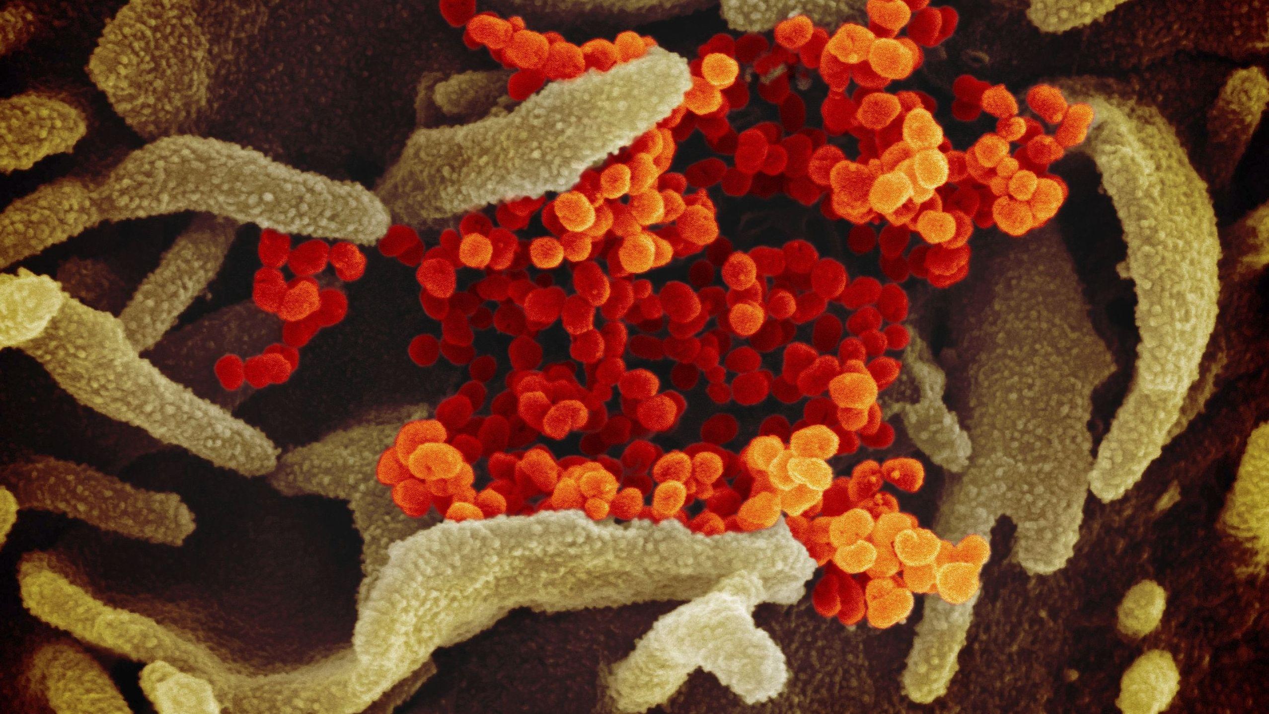 """Eine elektronenmikroskopische Aufnahme des """"U.S. National Institute of Health"""" zeigt das neuartige Coronavirus (SARS-CoV-2)"""