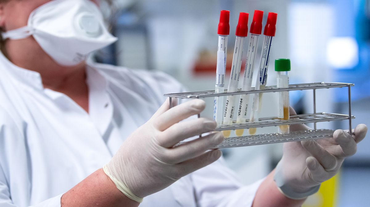 Eine Medizinerin bereitet Proben von Menschen mit Covid-19 Verdacht in einem Labor für die weitere Analyse vor.