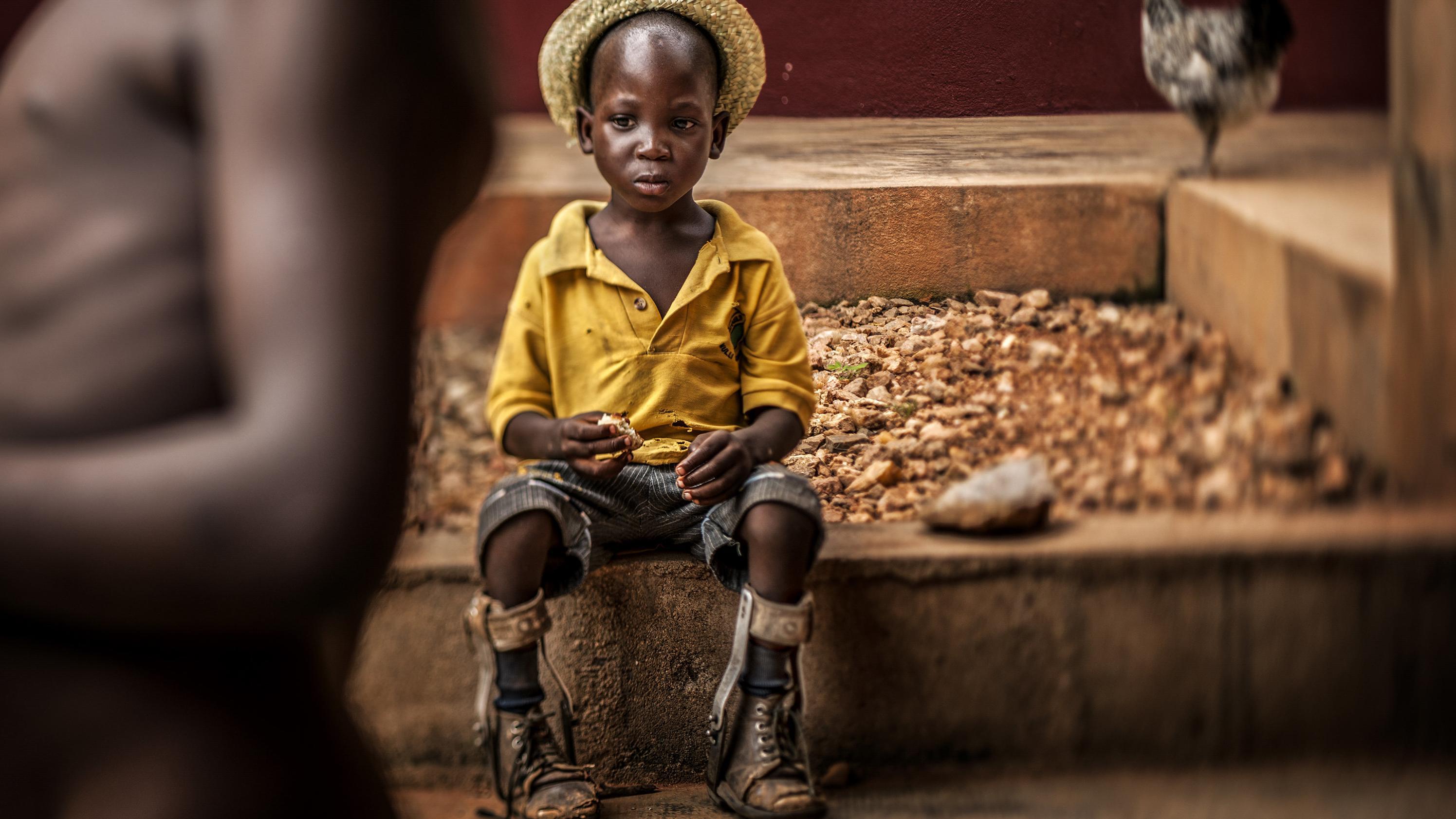 Unicef Foto des Jahres 2018: Junge mit Beinprothesen in einem Waisenhaus in Togo.