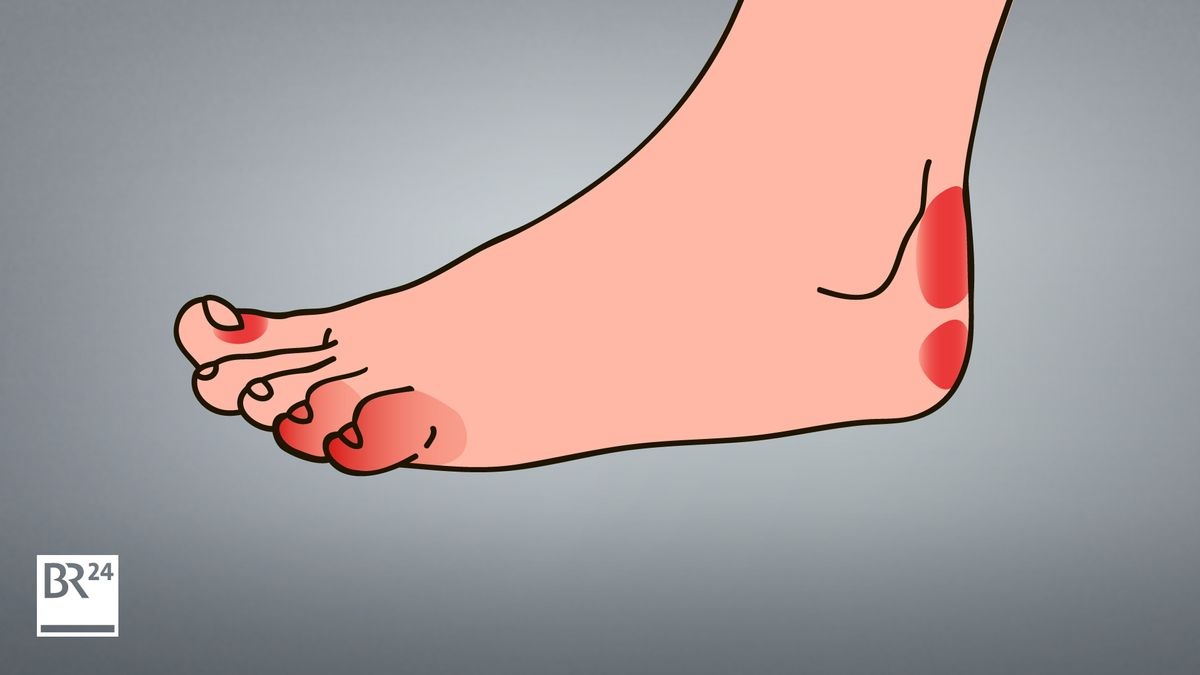 Schwellungen an Zehen, Fußsohlen, Fersen, Fingern oder Gliedmaßen: Spätfolgen einer Coronavirus-Infektion?