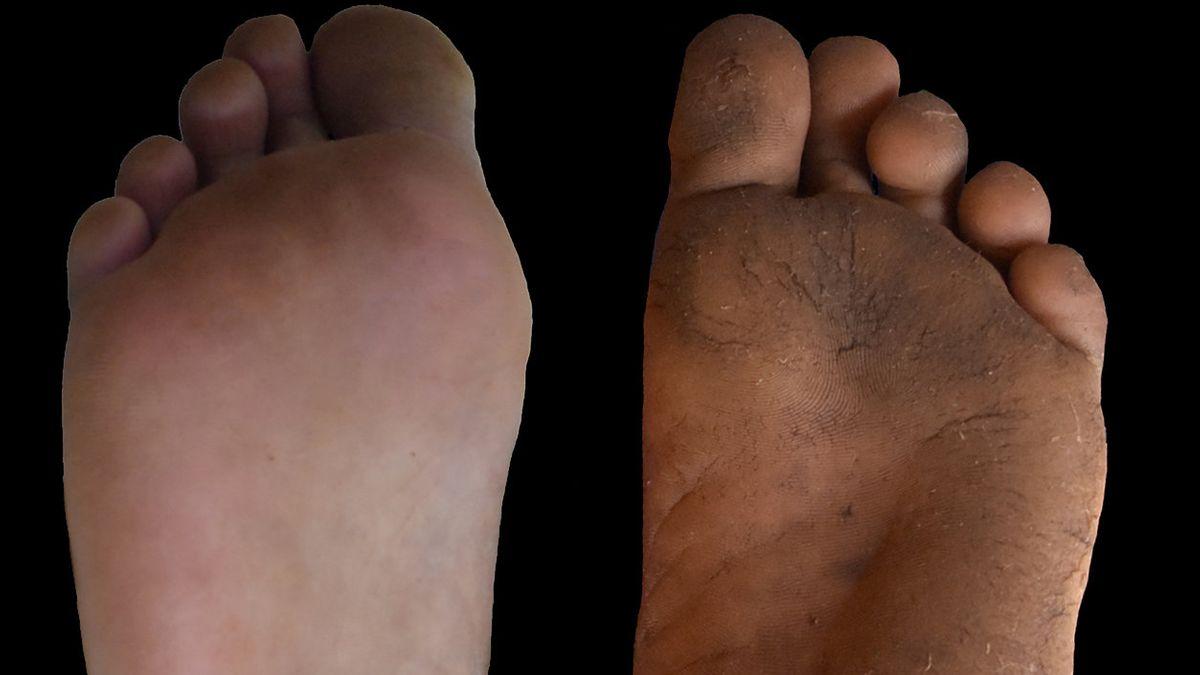 Hornhaut (rechts) wirkt sich beim Gehen nicht nachteilig aus, im Gegenteil. Wissenschaftler empfehlen deshalb Schuhe mit dünnen, starren Sohlen.