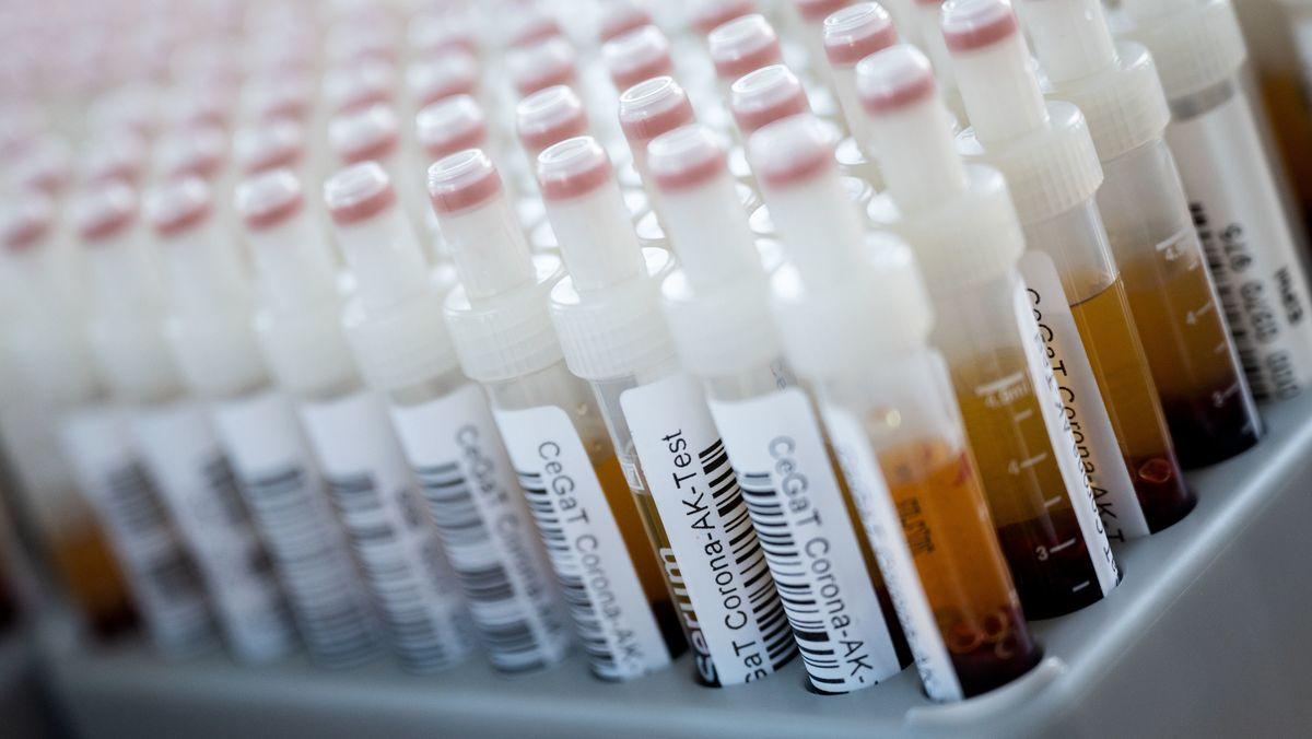 Blutentnahmeröhrchen mit Blutproben für einen Corona-Antikörper-Test des Tübinger Humangenetik-Labors CeGaT stehen in einem Rack (Archivbild)
