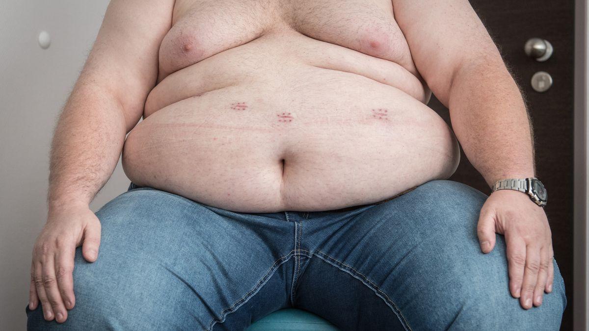 Trotz Schlauchmagen ist der Kampf gegen das Übergewicht sehr schwer.