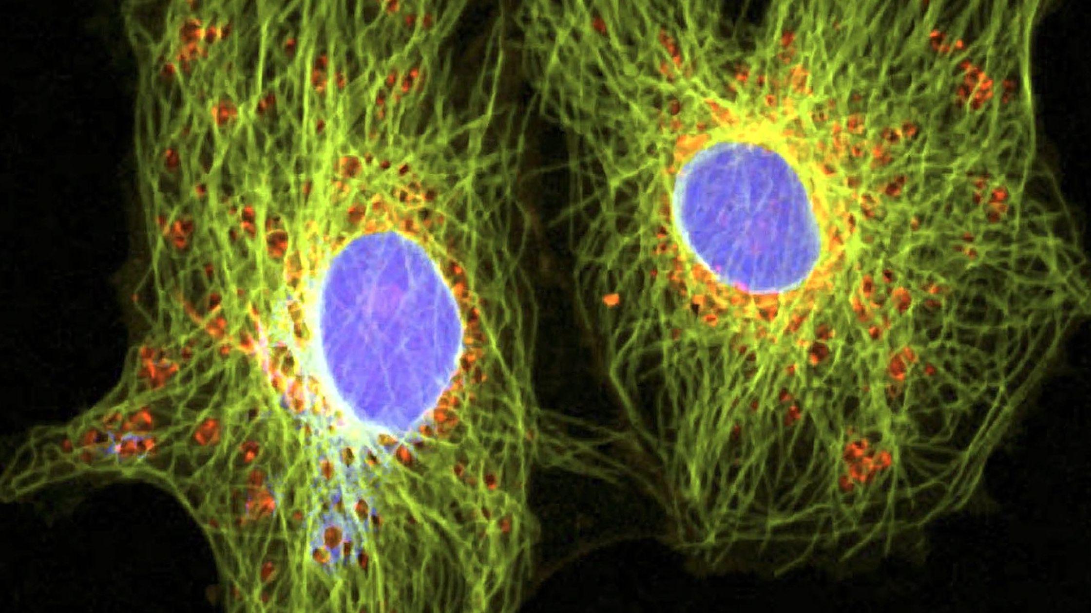 Krebszellen durch ein spezielles Mikroskop betrachtet.