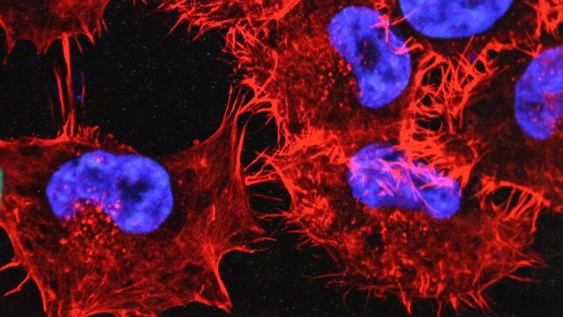 Hautkrebszellen unter dem Mikroskop.