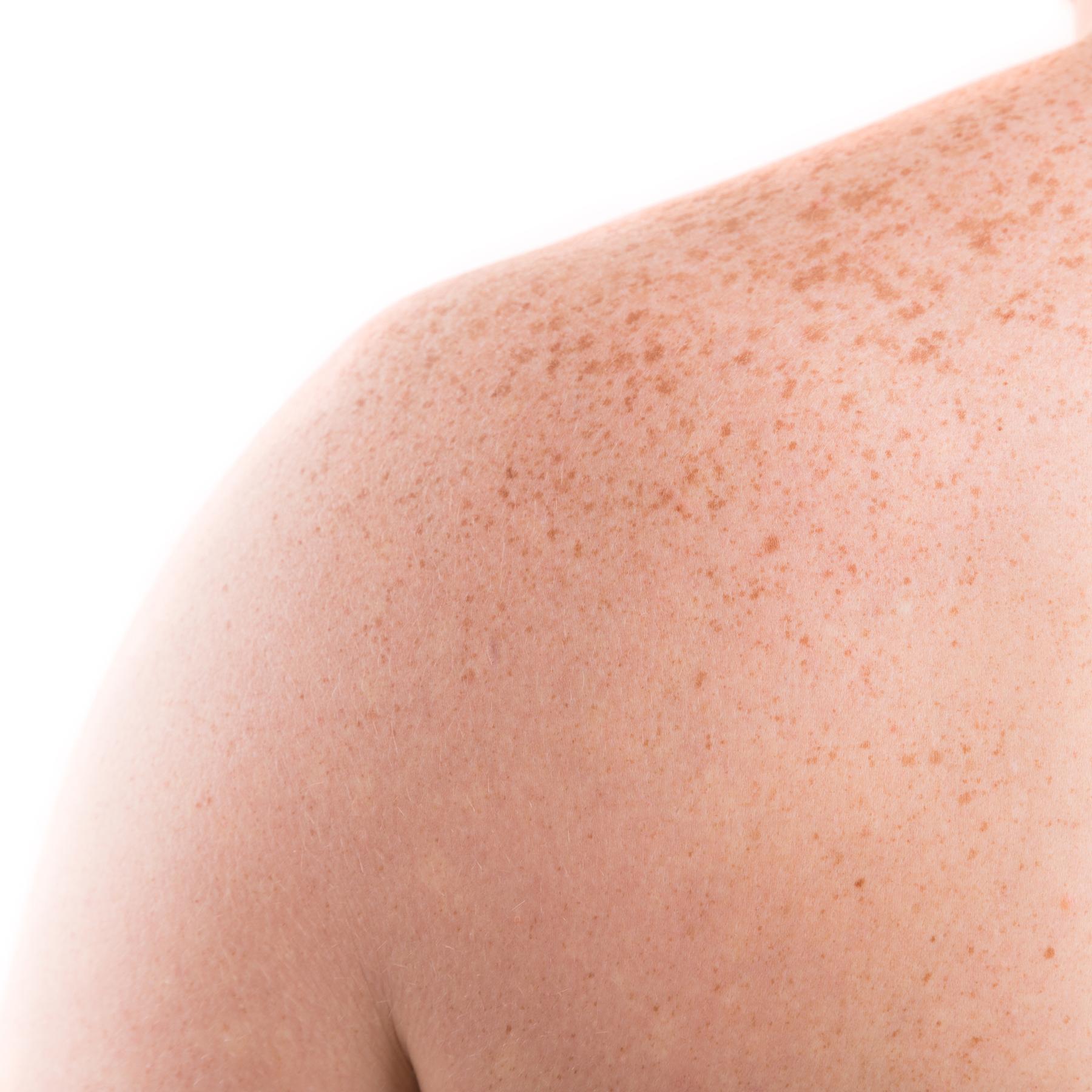 Die Haut - Empfindliche Schutzbarriere