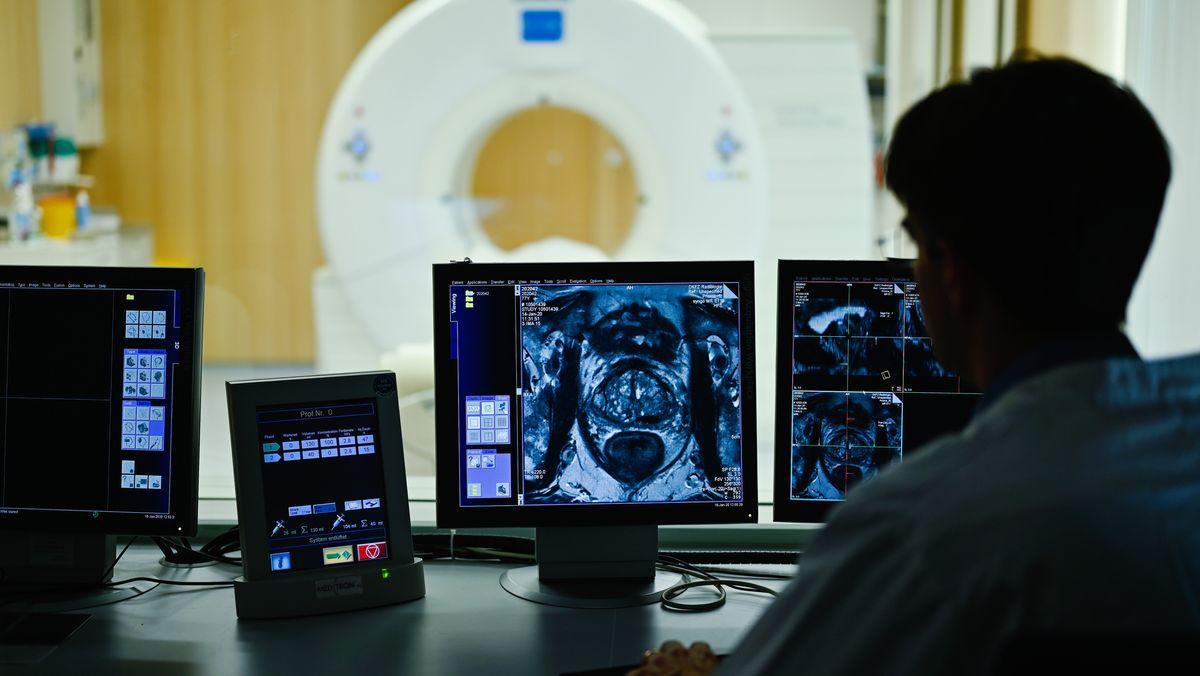 Ein Mitarbeiter betrachtet in einem Kontrollraum des Deutschen Krebsforschungszentrum (DKFZ) auf einem Monitor das Querschnittsbild einer Prostata.