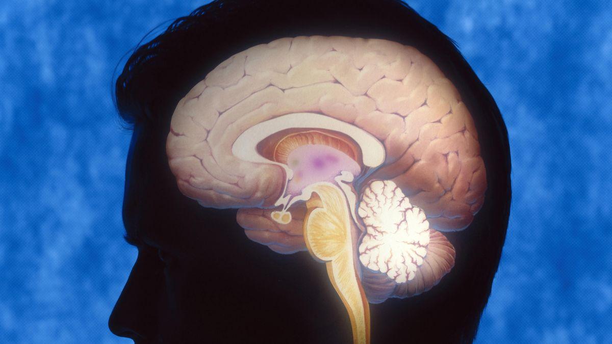 Stärkere Verknüpfungen zwischen neuronalen Netzwerken können Defizite bei Menschen ausgleichen, denen eine Gehirnhälfte fehlt.
