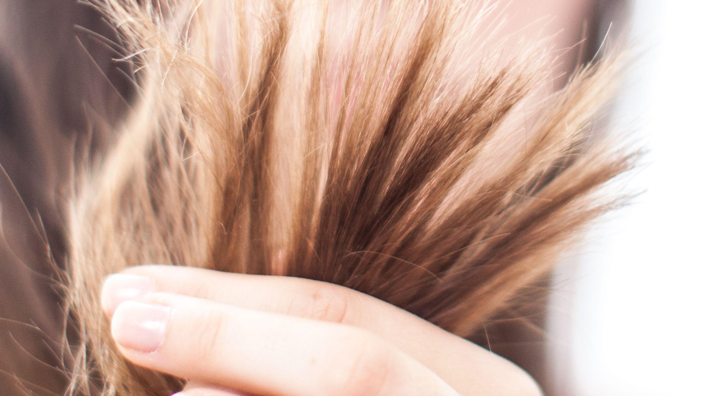 Haarbüschel in der Hand.