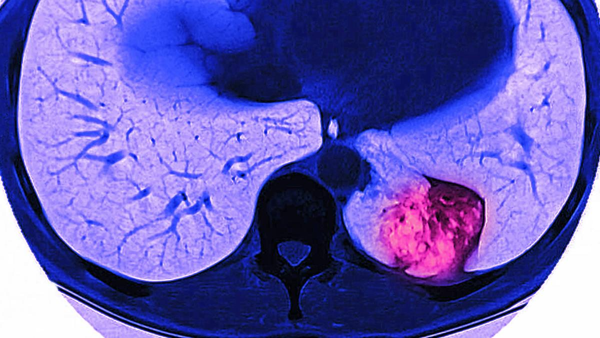 Auf dieser MRT-Aufnahme ist ein Tumor im Lungenflügel zu erkennen.