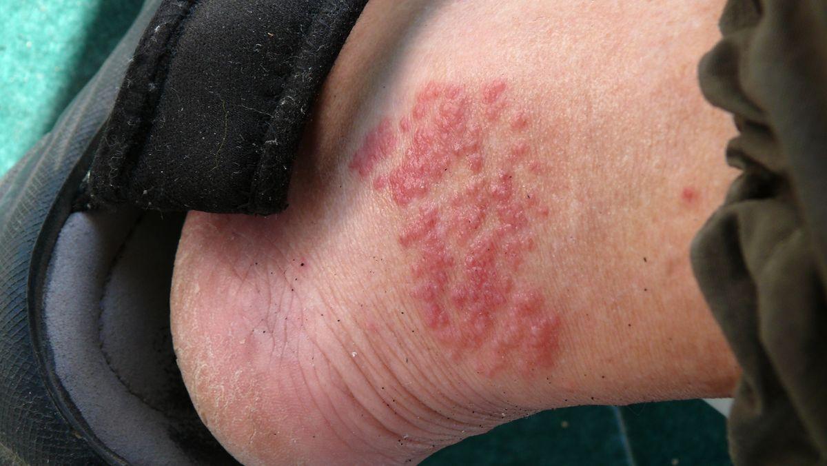 Verletzung am Fuß durch Kontakt mit einer Feuerqualle