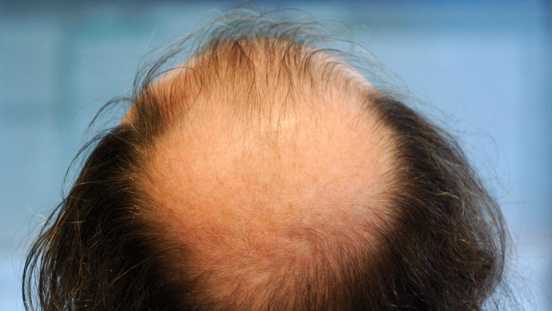Haarausfall macht vielen Männern zu schaffen. Sie greifen deshalb auch zu harten Mitteln.