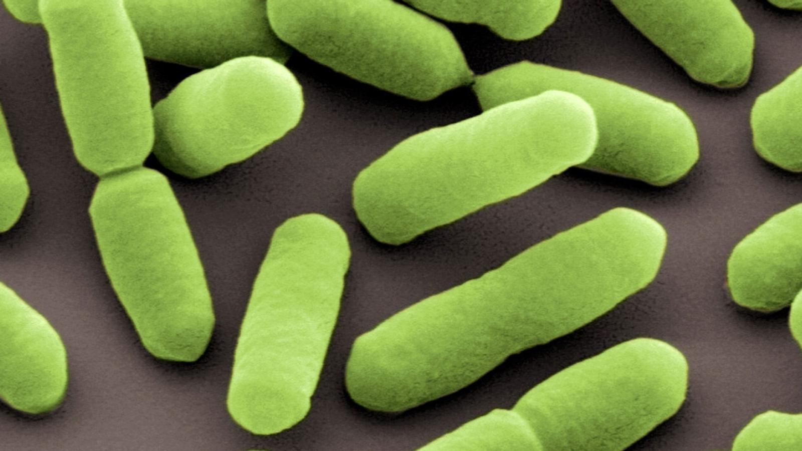Zwei Menschen sind gestorben, weil sie mit Listerien verseuchte Wurst  gegessen haben. Wo sind die Keime drin und wie kann man einer Infektion  vorbeugen?