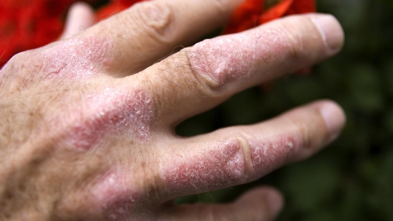 Schuppenflechte (Psoriasis) sind an der Hand eines Mannes zu sehen. Neue Medikamente ermöglichen ein beschwerdefreies Leben.