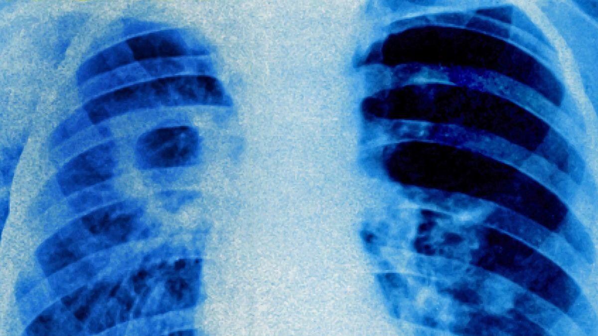 Eine Röntgenaufnahme einer von Tuberkulose befallenen Lunge.