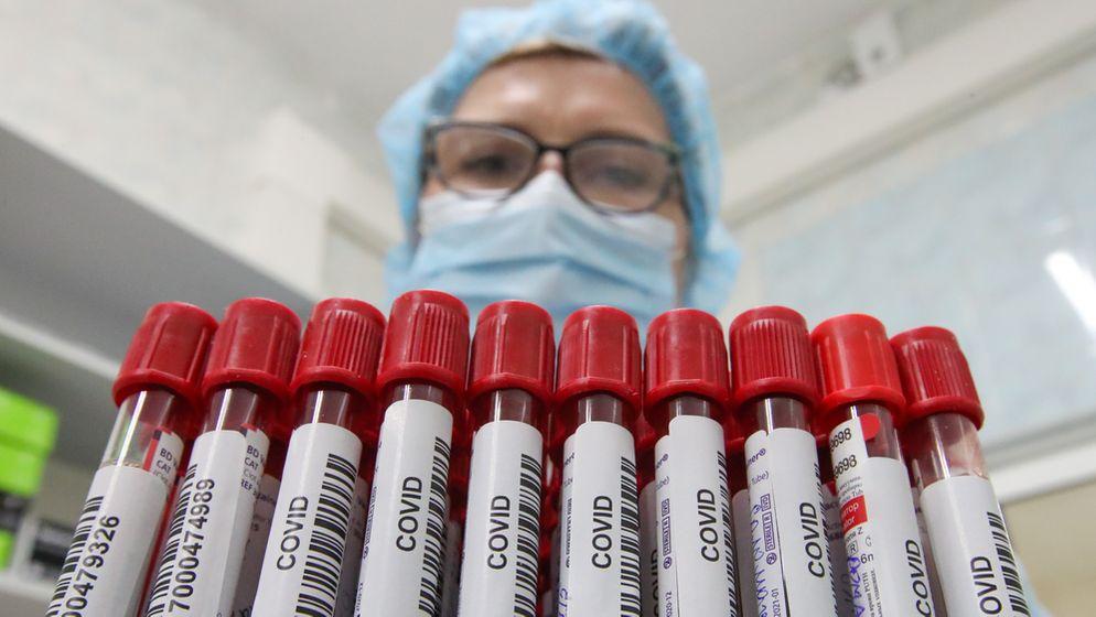 Mehrere Corona-Test-Röhrchen, die von einer Frau mit Mundschutz getragen werden   Bild:Picture Alliance