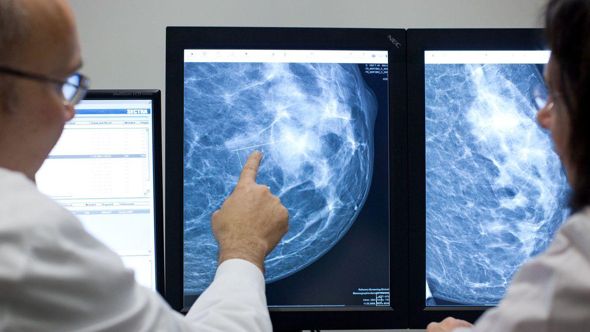 Mammographie einer Brust mit auffälligen Veränderungen