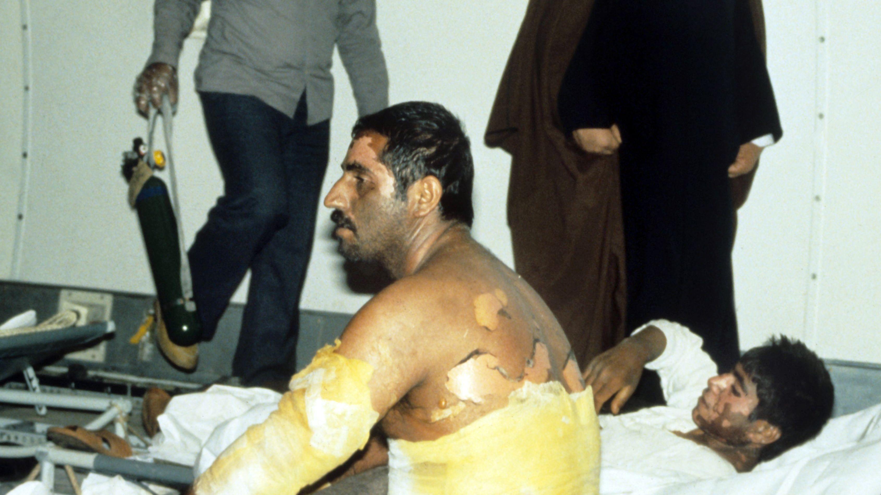 Mehrere im Golfkrieg durch Giftgas schwer verwundete iranische Soldaten, 1985