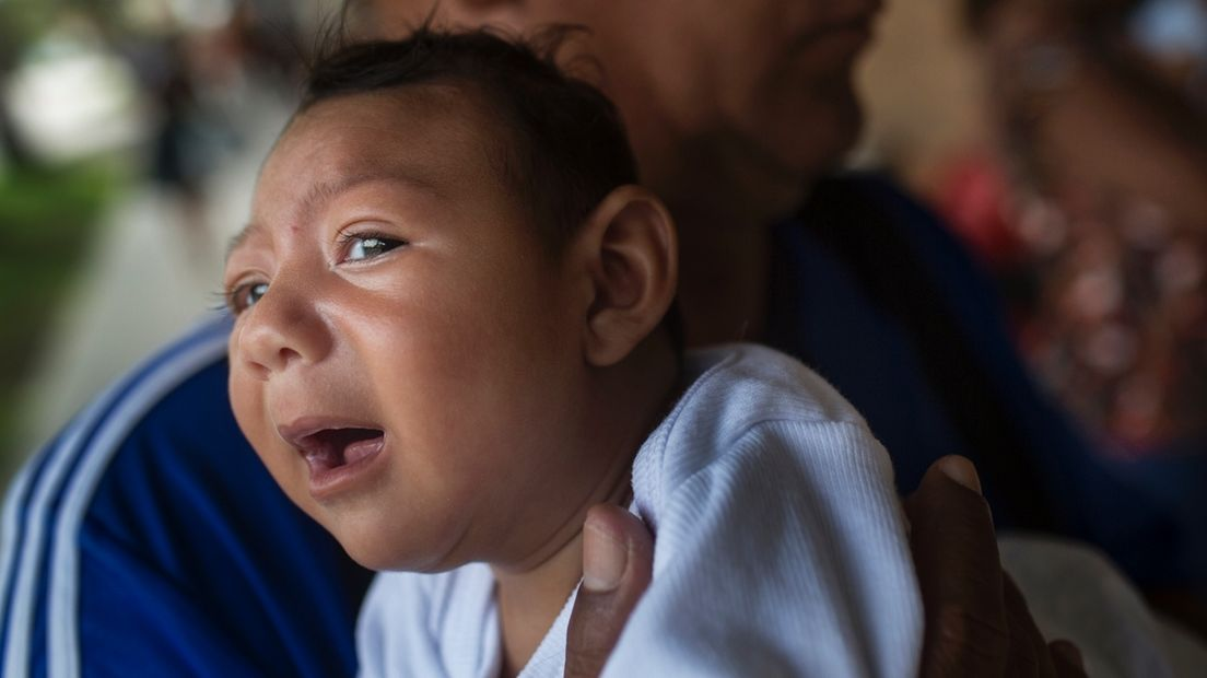 Zika-Virus und die Folgen: Ein Kind mit Mikrozephalie