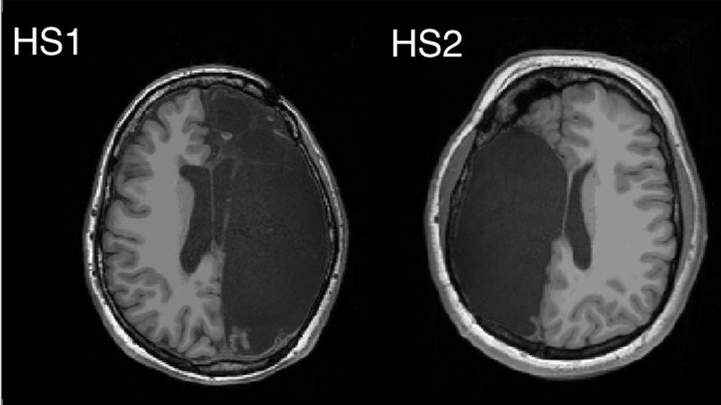 Funktionelle MRT-Aufnahme von zwei der sechs Probanden mit linker bzw. rechter neurochirurgischen Entfernung einer Gehirnhälfte.