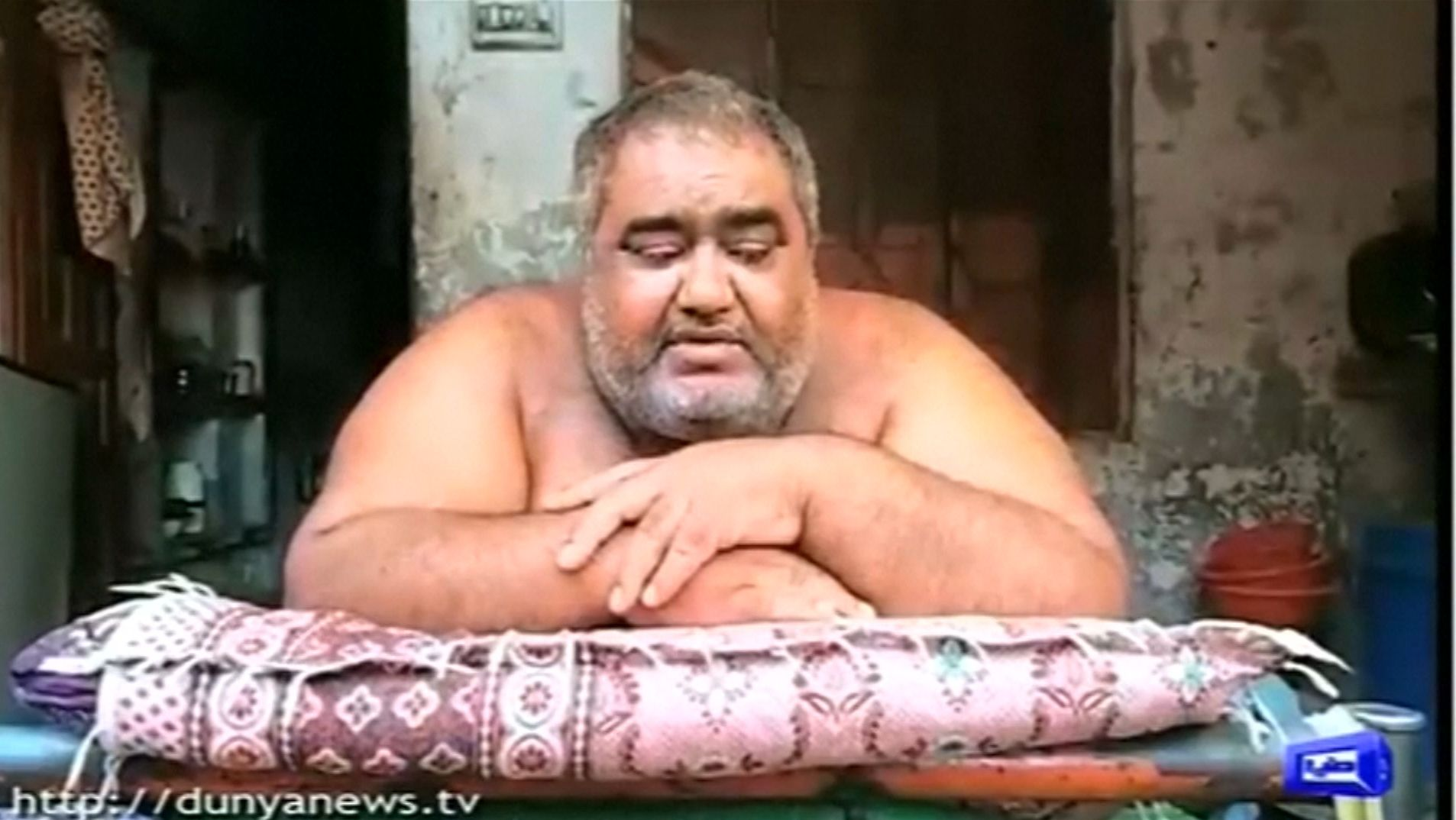Der Pakistaner Noor Hasan wiegt 330 Kilogramm.