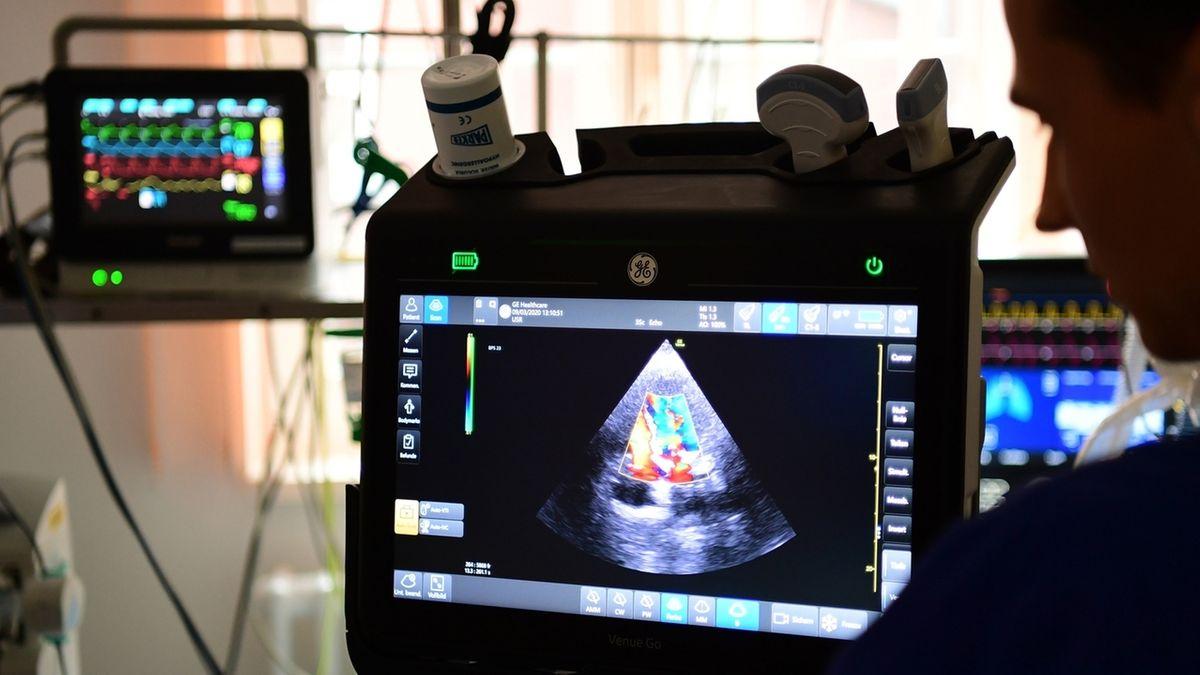 Das Herz eines Patienten in einer Ultraschall-Untersuchung: Eine neue Studie hat festgestellt, dass 78 Prozent der untersuchten Patienten Schäden an Herzmuskel oder Herzbeutel aufweisen.
