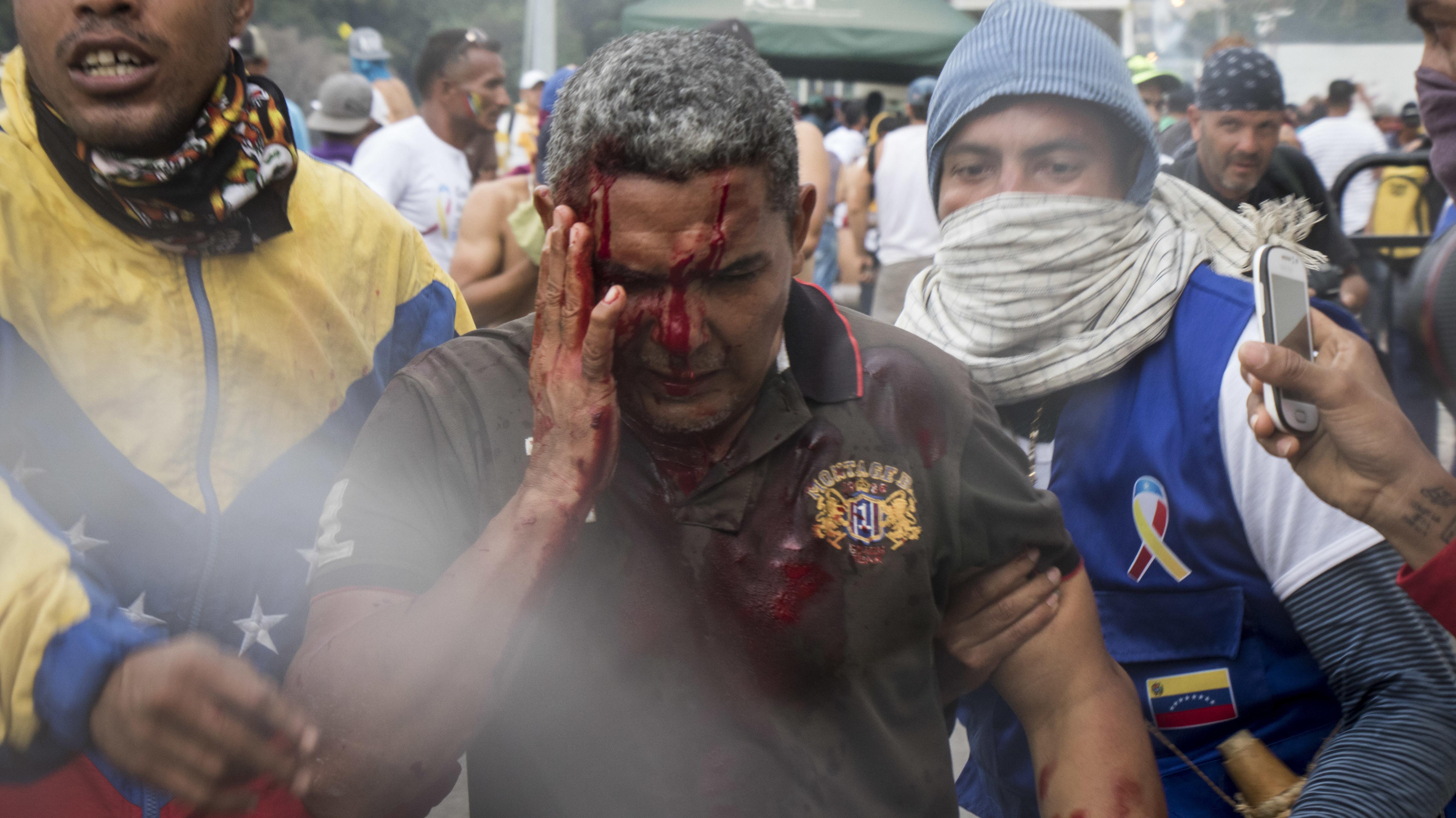 Ein blutender Demonstrant an der Grenzbrücke zu Kolumbien.