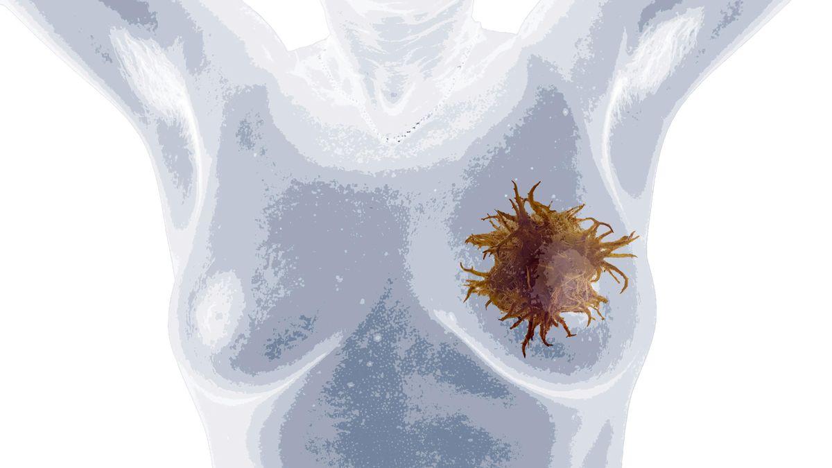 Brustkrebs ist bei Frauen die häufigste Krebserkrankung weltweit. Die Sterblichkeit ist aber nur bei älteren Frauen sehr hoch.