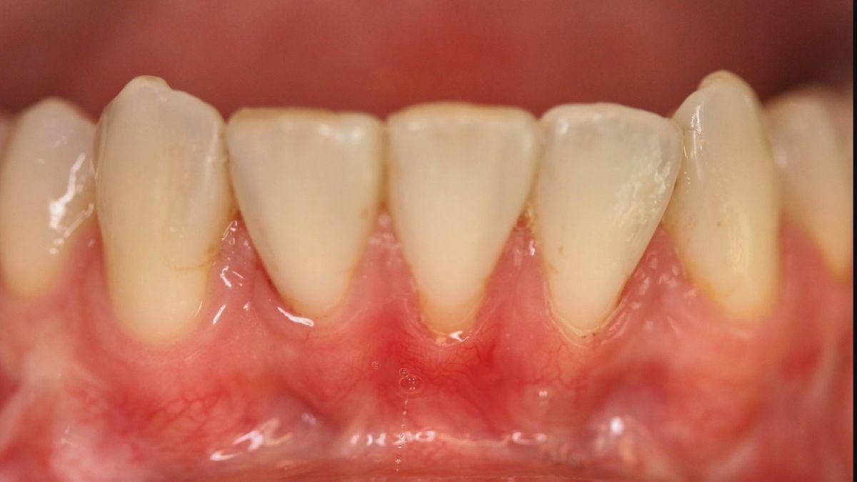 Paradontitis im Munde eines Patienten