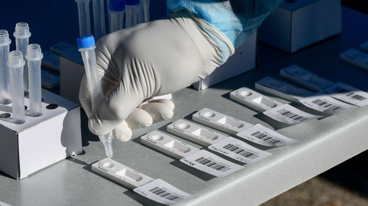 Antigen-Schnelltests