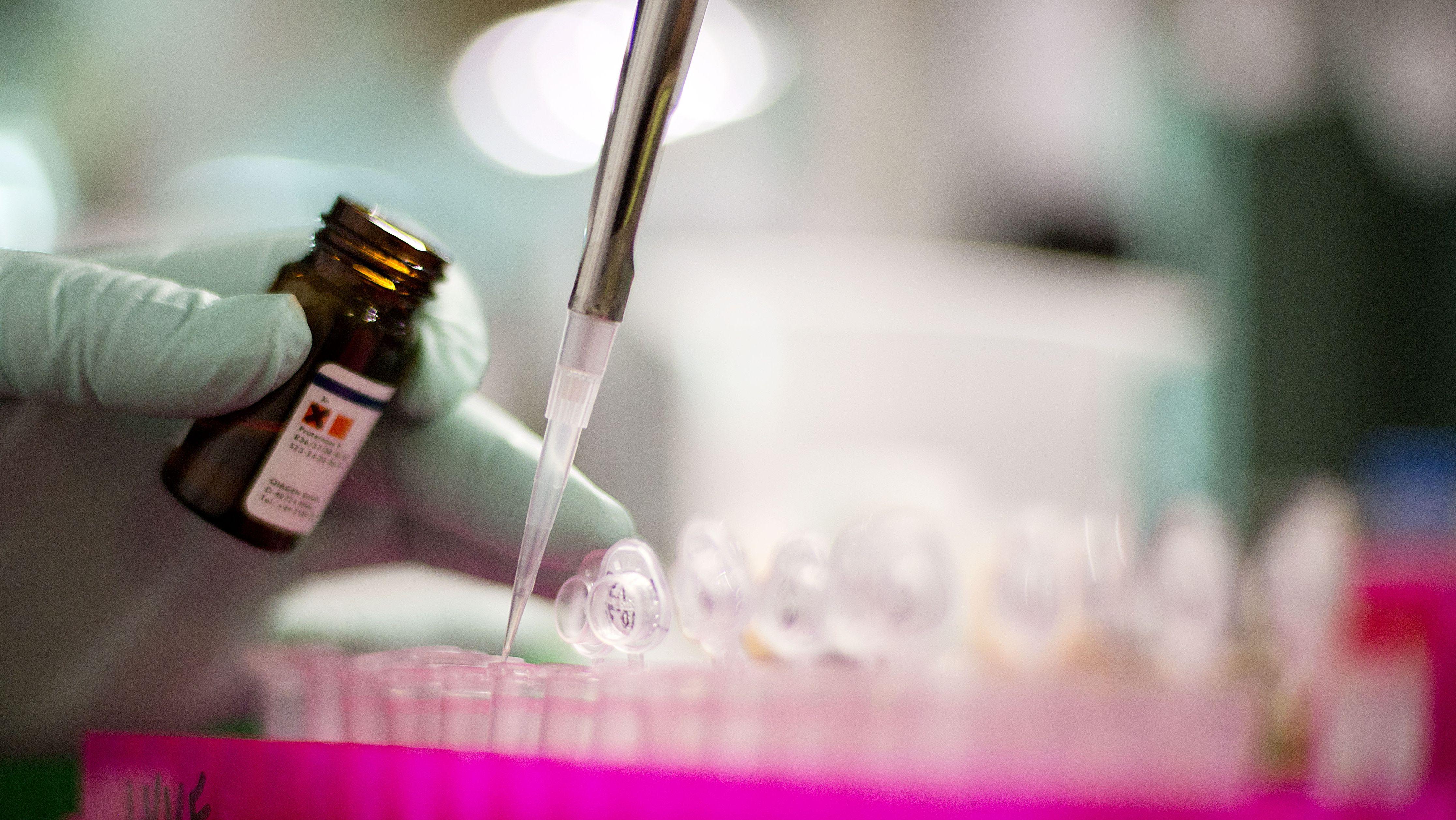 Symbolbild: Test auf Listerien