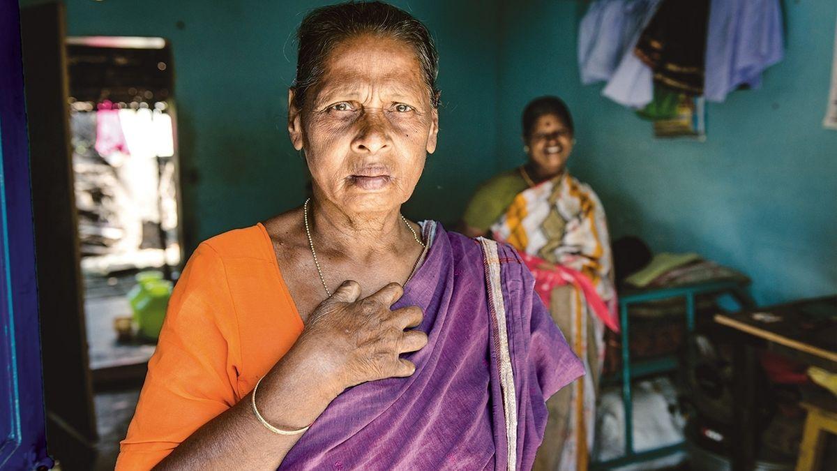 Lepra-Patienten