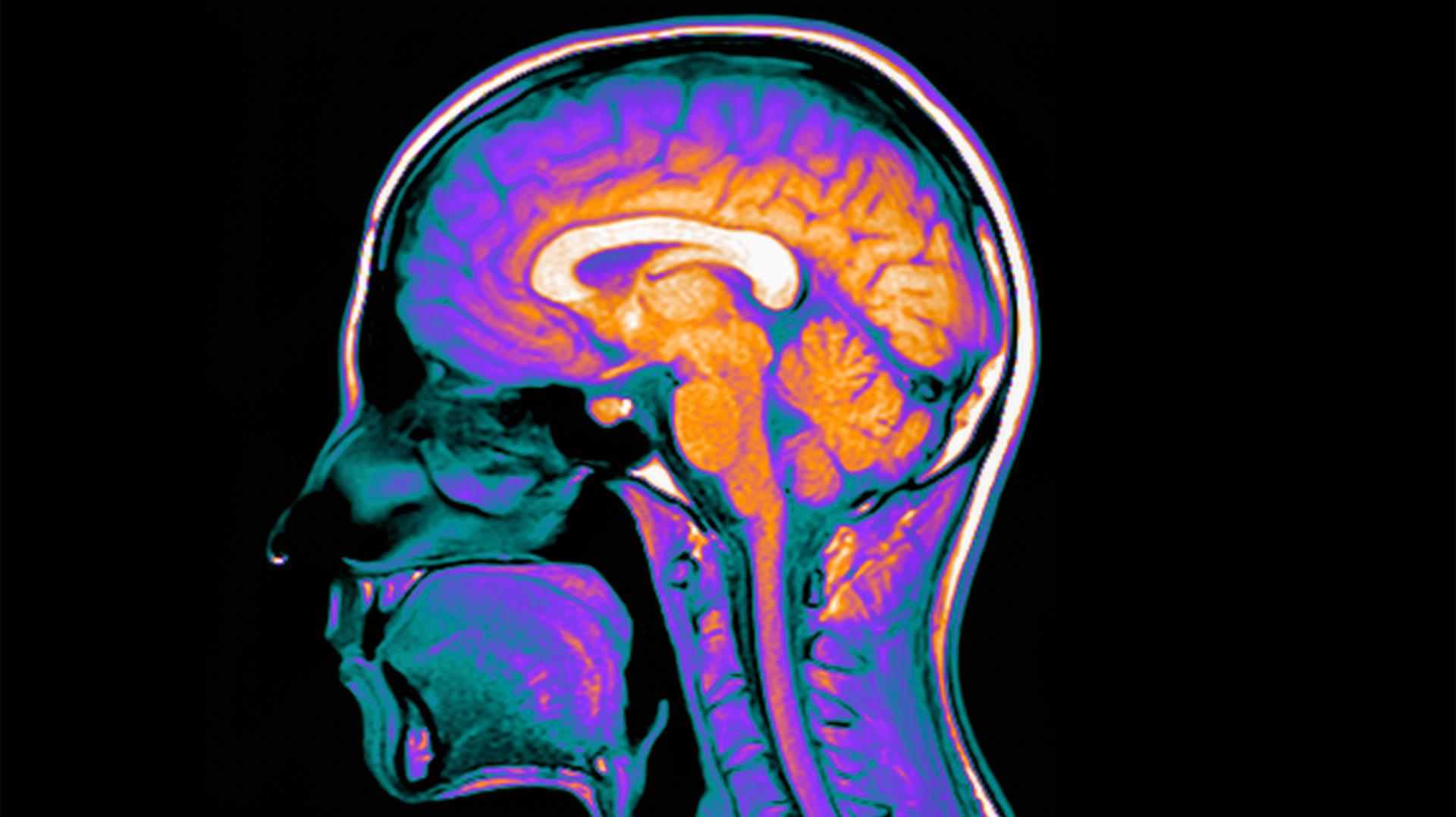 Xenius | Wissen : Gehirn - Wie es tickt und was es auf