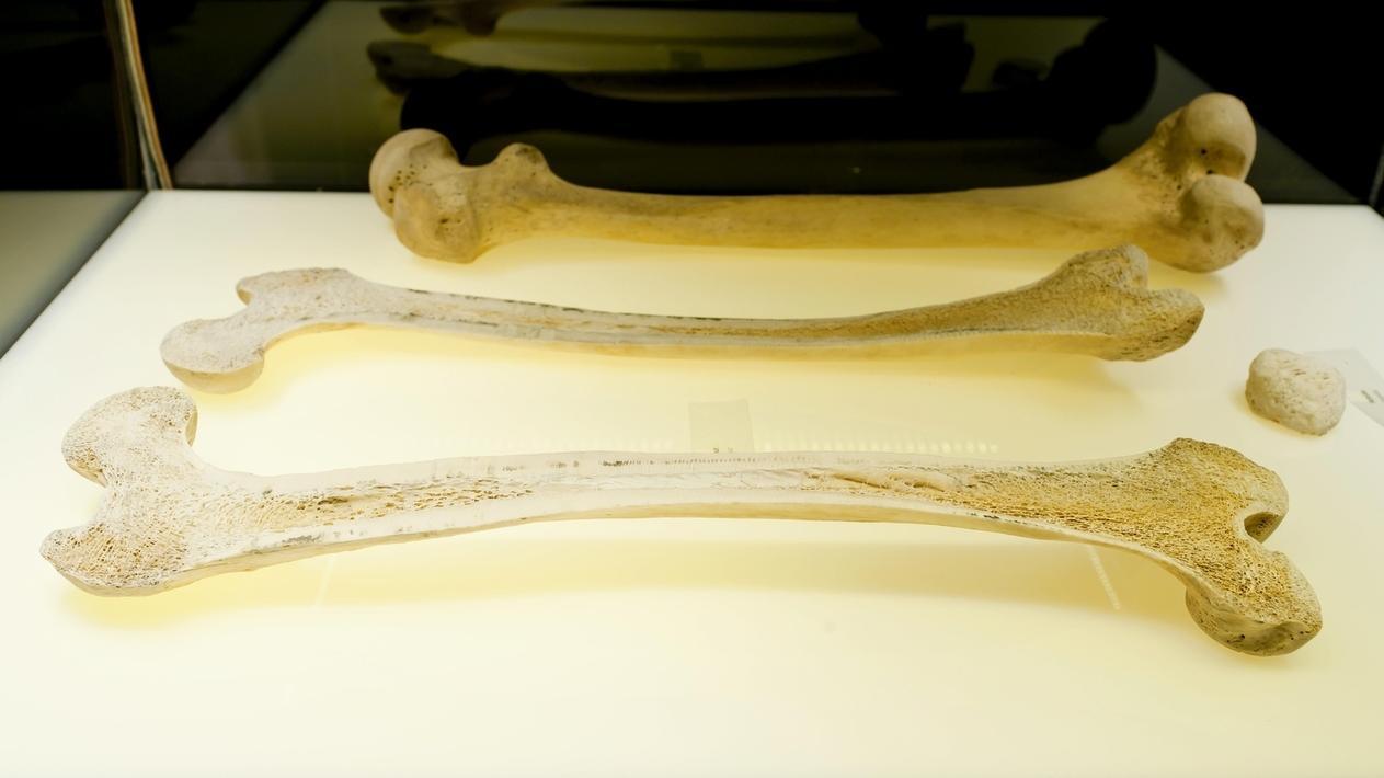 Menschliche Oberschenkelknochen in einer Vitrine