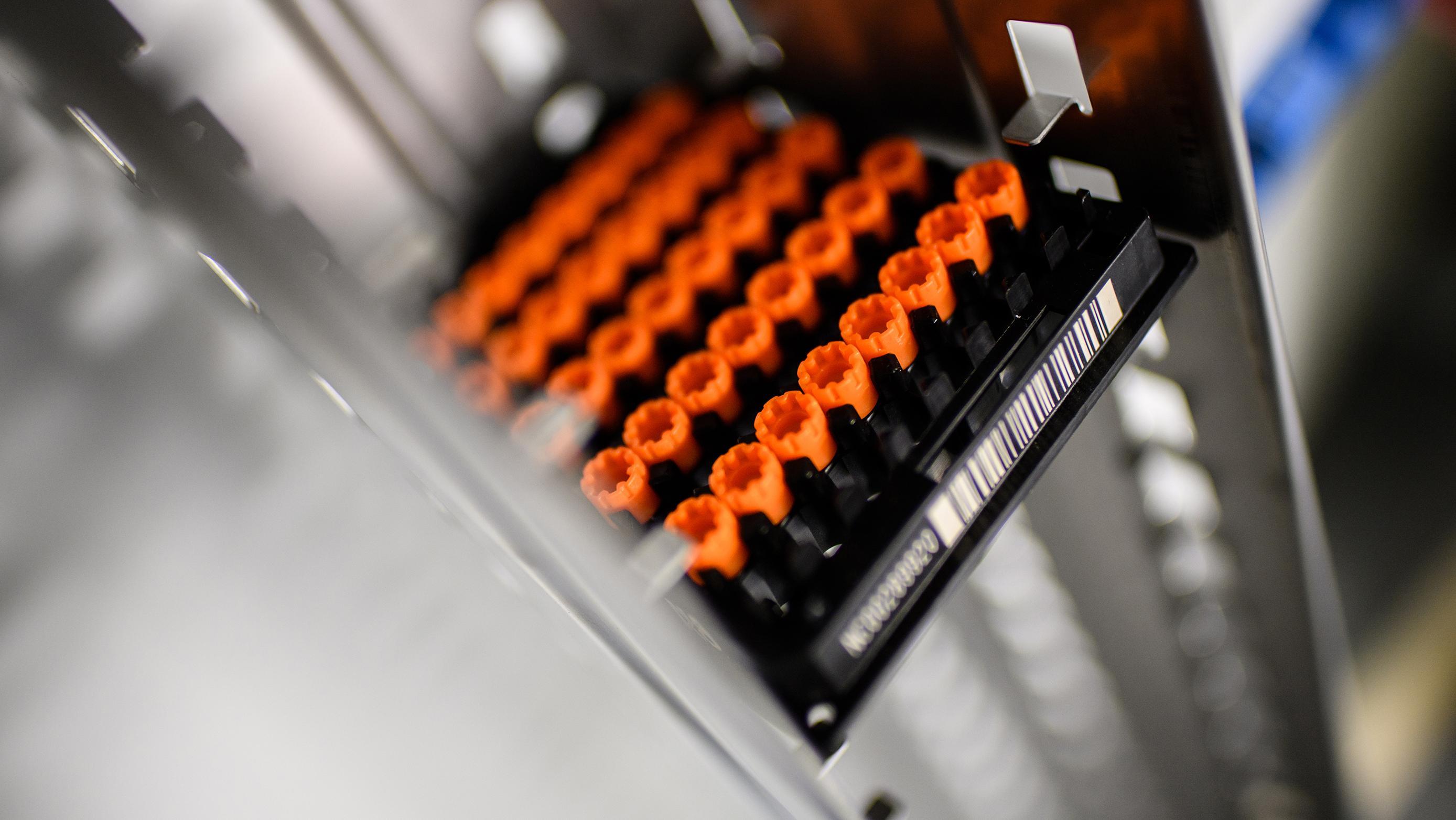So werden die Proben menschlicher Biomaterialien in Deutschlands größtem, neu eröffneten Lager in Oberschleißheim bei München aufbewahrt.