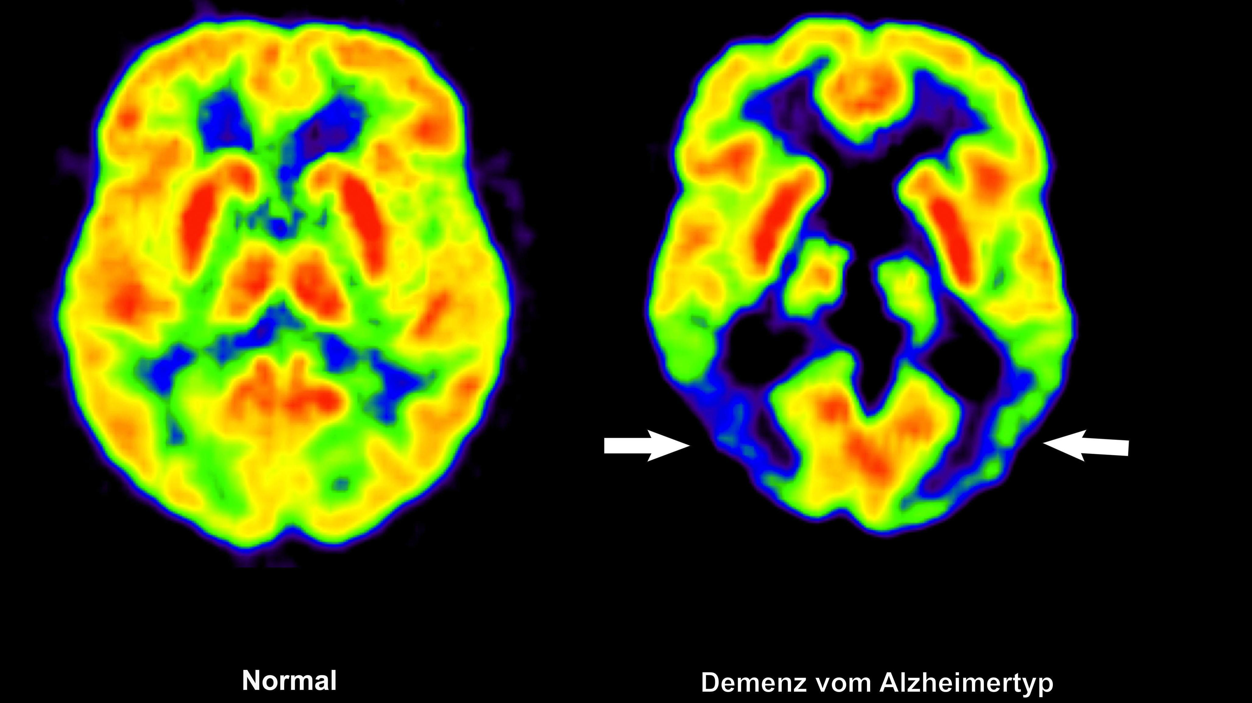 Gegenüberstellung zweier Gehirne mithilfe einer Positronen-Emissions-Tomografie (PET): links im gesunden Zustand, rechts mit Alzheimer. US-Forscher haben jetzt ein Programm entwickelt, mit dem Anzeichen von Alzheimer früher erkannt werden können als bisher.