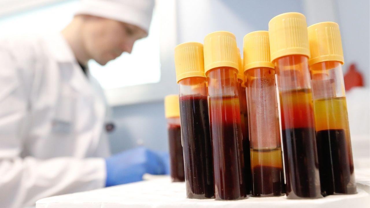 Ein Mediziner testet Blutproben auf HIV.