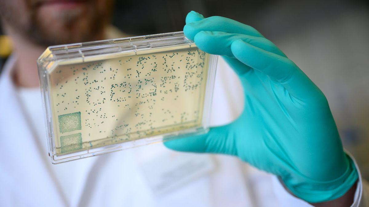 Ein Mann schaut sich in einem Labor einen Träger mit Bakterien an, aus denen DNA und anschließend RNA gewonnen wird. (Symbolbild)