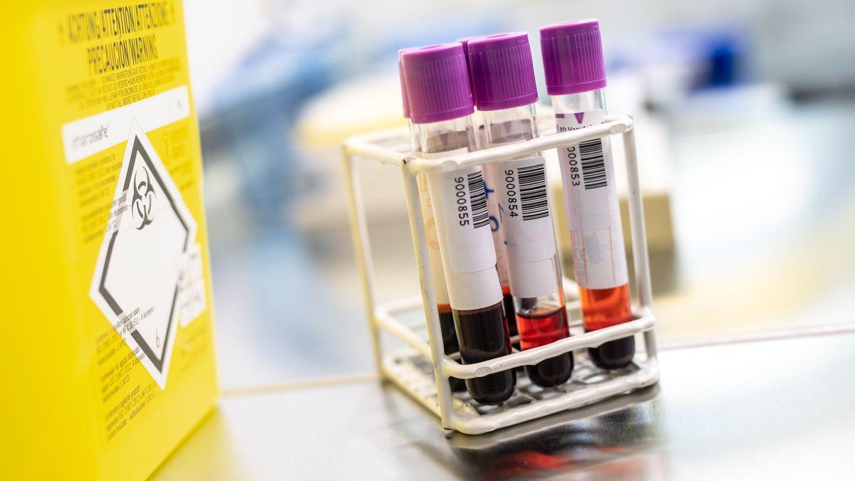 Blutproben im Diagnostiklabor für die Covid-19-Studie der Abteilung für Infektions- und Tropenmedizin der LMU München.