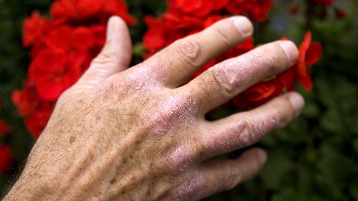 Hand mit Schuppenflechte